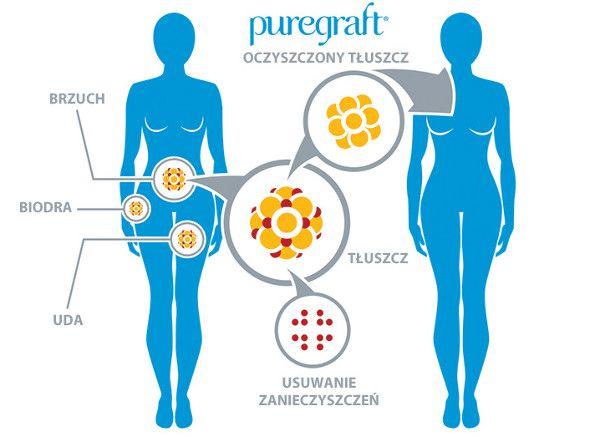 puregraft
