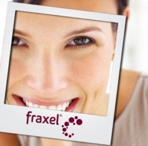 Odmładzanie laserem fraxel