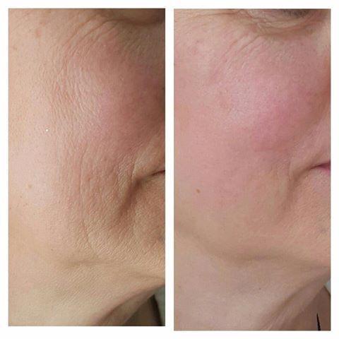 Ultraskin odmładzanie twarzy