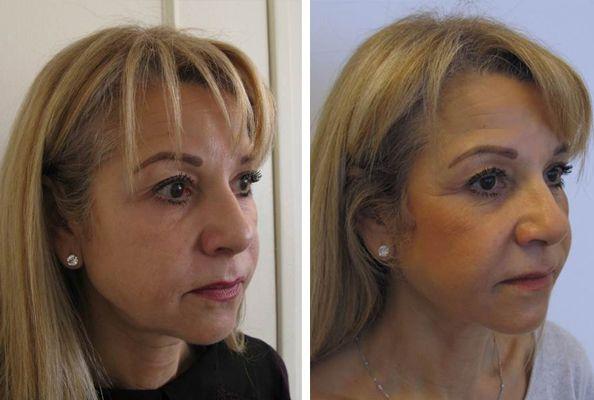 Ultraskin lifting twarzy efekty