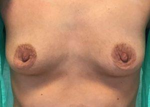 Lipofilling piersi warszawa