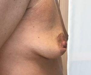 Powiększanie piersi własnym tłuszczem warszawa